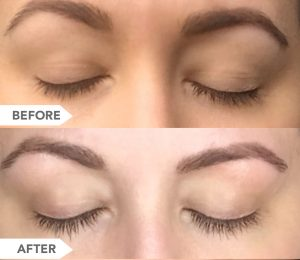 BIOLUMA Eyelash Growth Serum Before and After